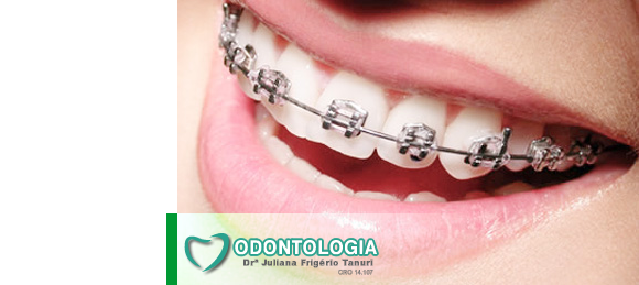 ortodontia em maringá
